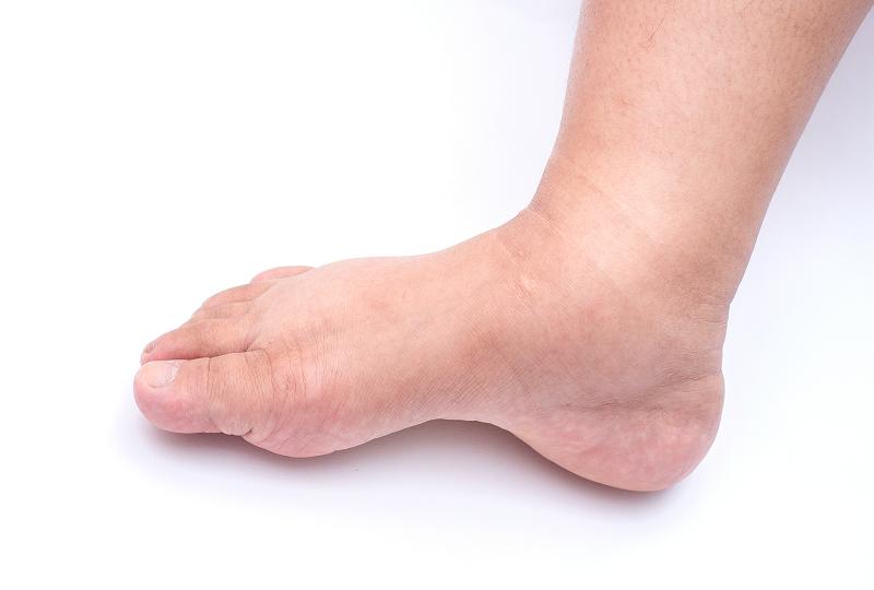 artrózis kezelés otthoni körülmények között térd sérülések futás után