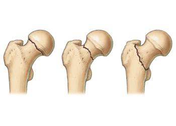 Futás- és térdfájdalom, A térdfájdalom lehetséges kezelése