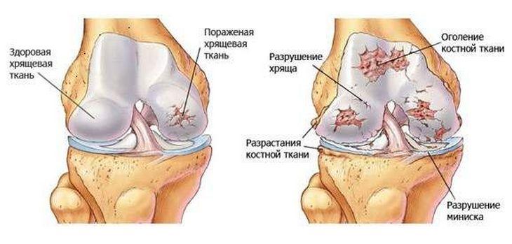a karok és a lábak kis ízületei fájnak készítmények vállízület bursitisére