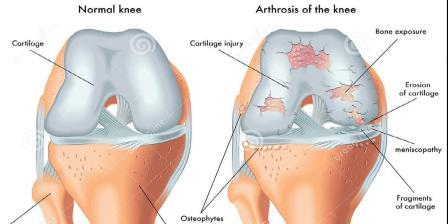 gonartrosis, amely deformálja a térd artrózisát