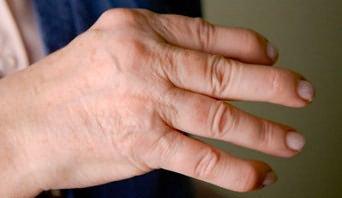 emberi kézbetegség, rheumatoid arthritis ízületi fájdalom infúzió