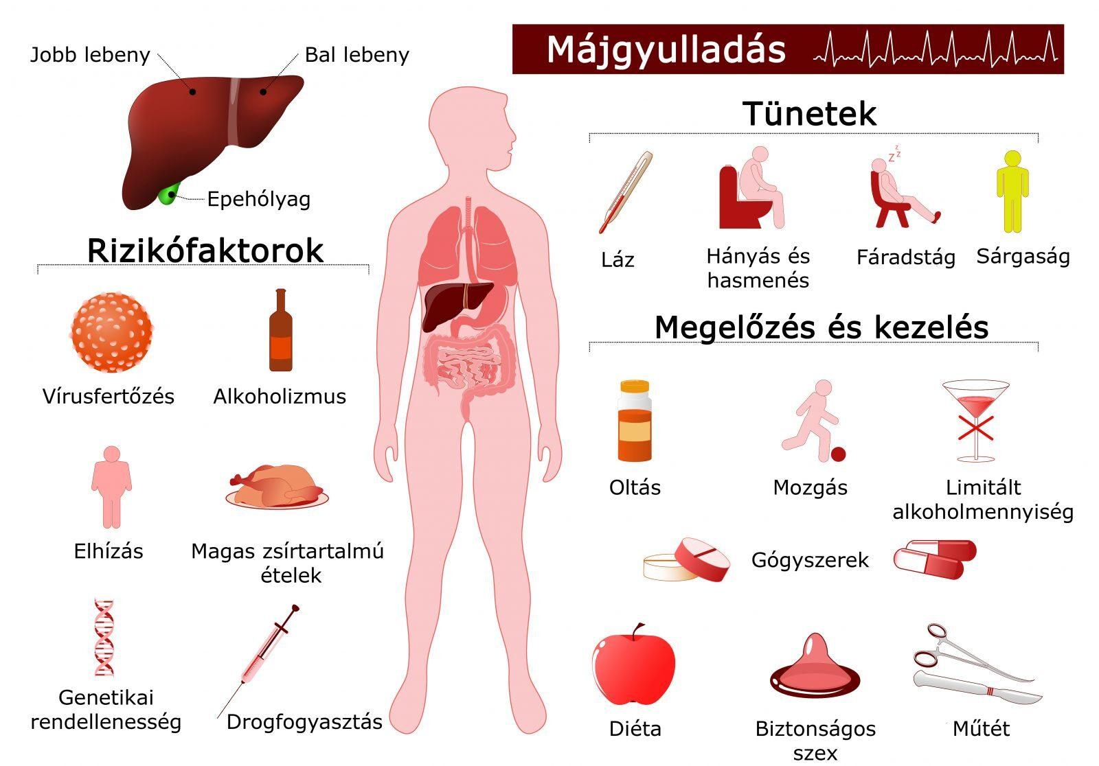hepatitis b és ízületi fájdalmak ízületi fájdalmak a kezekben