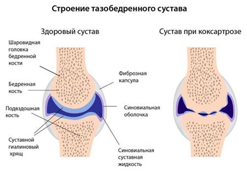 hogyan kell kezelni a csípőízület 3. fokozatú artrózisát ízületeket melegítő kenőcsök