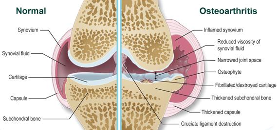 hogyan kezeljük a könyökízület osteoarthritist