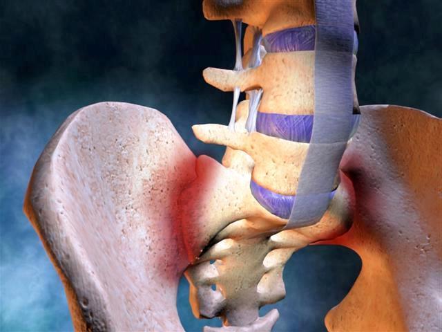 a csípőízület fáj a lépcsőn történő felmászáskor
