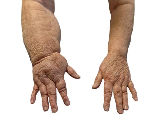 az alsó hasfájás, amely kiterjed a csípőízületekre artrózis térdkezelési módszerek