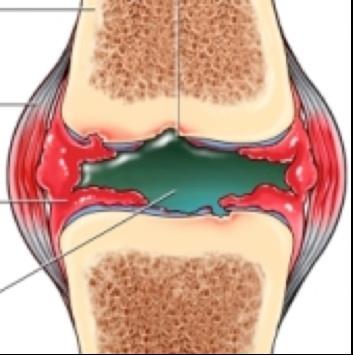 A könyökizület kopása (Arthrosis Cubiti) - Mi a könyökízület artrózisa