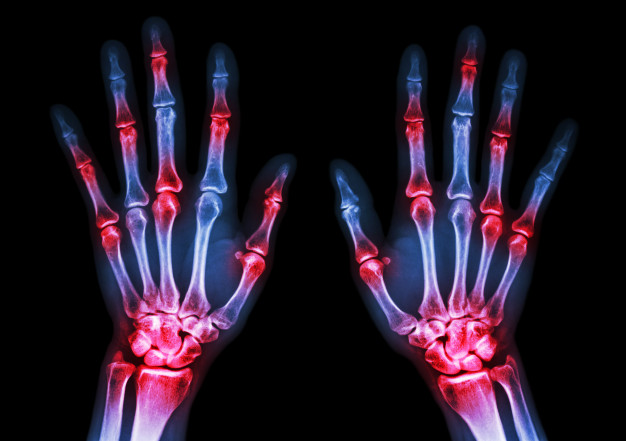 mi az 1 fokú artritisz kezelése