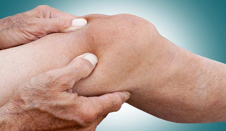 mikroáramú kezelés artrózis rheumatoid arthritis betegség