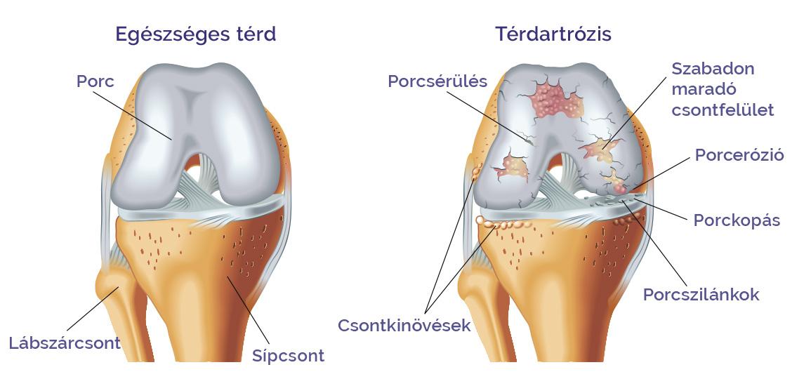 mintamenü térd artrózisához