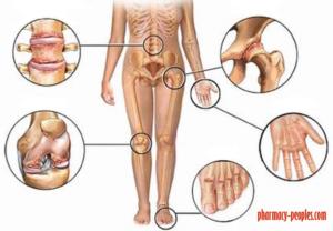 metronidazol ízületi gyulladás esetén glükozamin vagy kondroitin