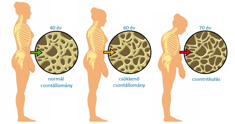 nem átlátszó csontritkulás tünetek kezelése ízületi betegség coxarthrosis