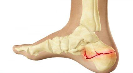 pszeudoarthrosis kezelés az alkar artrózisa