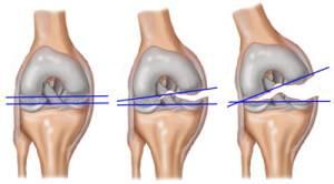 serdülőknél a térdízület fájdalmainak okai ízületi gyulladás a jobb kéz kisujján