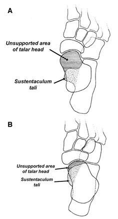 Torna boka osteoarthritis kezelésére. Mi az arthrózis?