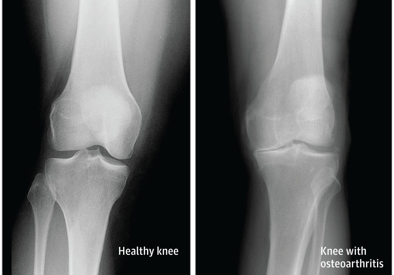 a láb artrózisa hogyan kell kezelni minden fáj az ízületekre
