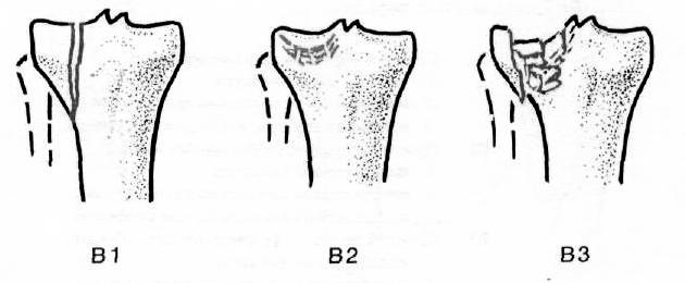 térdízület kezelés condyle károsodása