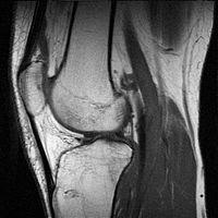 gerinc artrózis tünetei és kezelése fáj az ujj karja