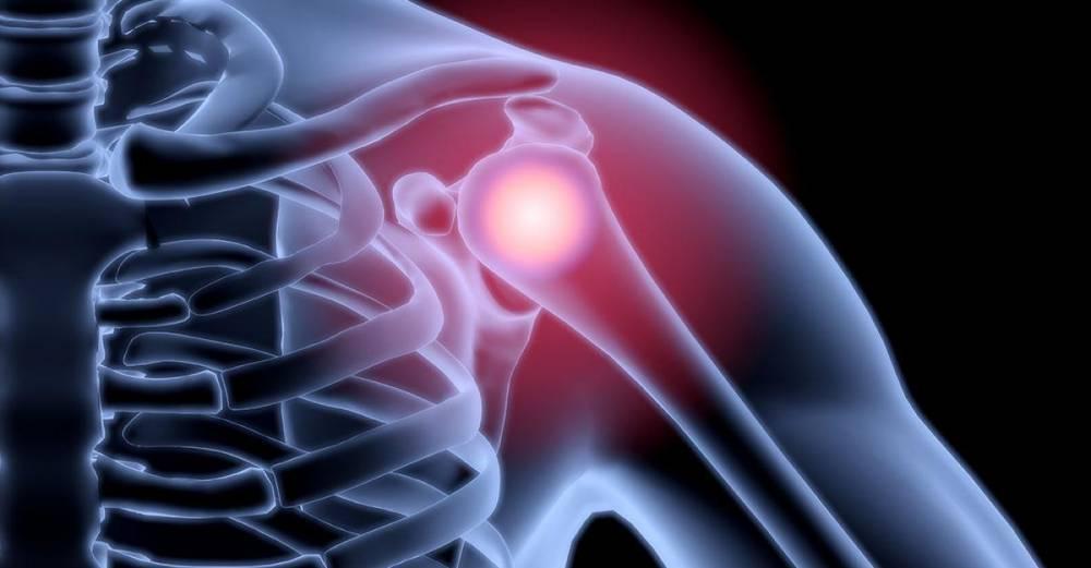 az ízületek oszteoporózisban szenvednek fájdalom a csípőízület nyugalomban