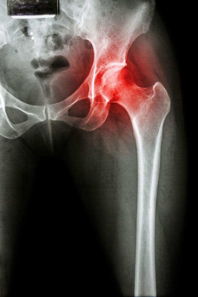 ízületi betegség coxarthrosis az ízületek és az izmok fájnak a csontokról