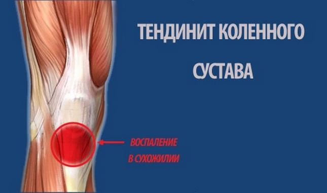 térdízületi gyulladás és kezelés