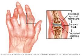 a clavicularis ízületi gyulladás okai