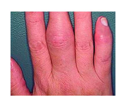 ízületi gyulladás az ujjban hogy az ízületi gyulladás hogyan nyilvánul meg a kézben
