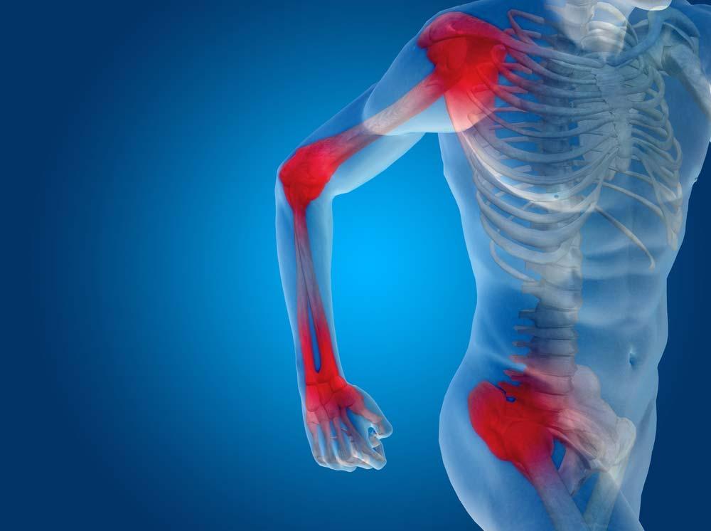 mi deformálja a csuklóízület artrózisát törött lábízület fáj