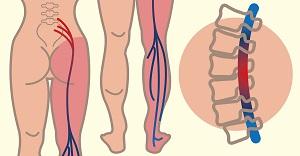 izomízületek ízületek vándorzó ízületi fájdalom és