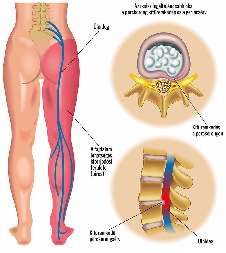 a lábak ízületein lévő csontok kezelése