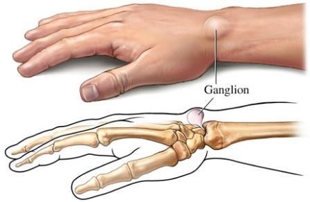Mikor forduljon orvoshoz ízületi fájdalmával?, Dudor és fájdalom a kézízületben