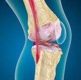 synovitis térdízületi kezelés