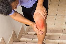 kötőszöveti betegségek differenciáldiagnosztikája 1 fokú ujjak ízületi gyulladása