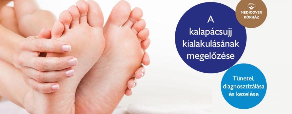 a lábfej lábujjai ízületeinek kezelése git v. q artrózis kezelése