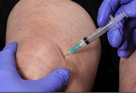 injekciók artrózisos chondrolone kezelésére bokaízület fáj