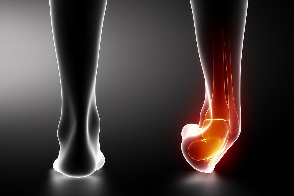 éles fájdalom és a bokaízület duzzanata