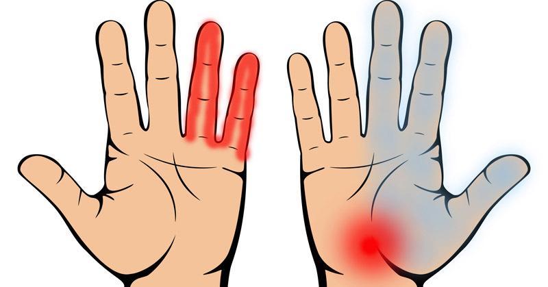 hogyan lehet gyógyítani a kézízületek fájdalmát ízületi fájdalom a d vitamin szedésekor
