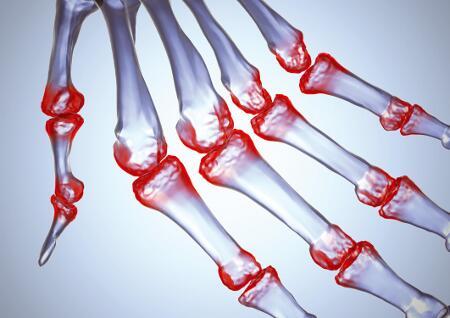 az artrózis csípőízületének kezelési módszerei