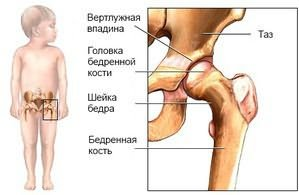 kenőcsök csontokhoz és ízületekhez ízületi gyulladás a kezelés lábain