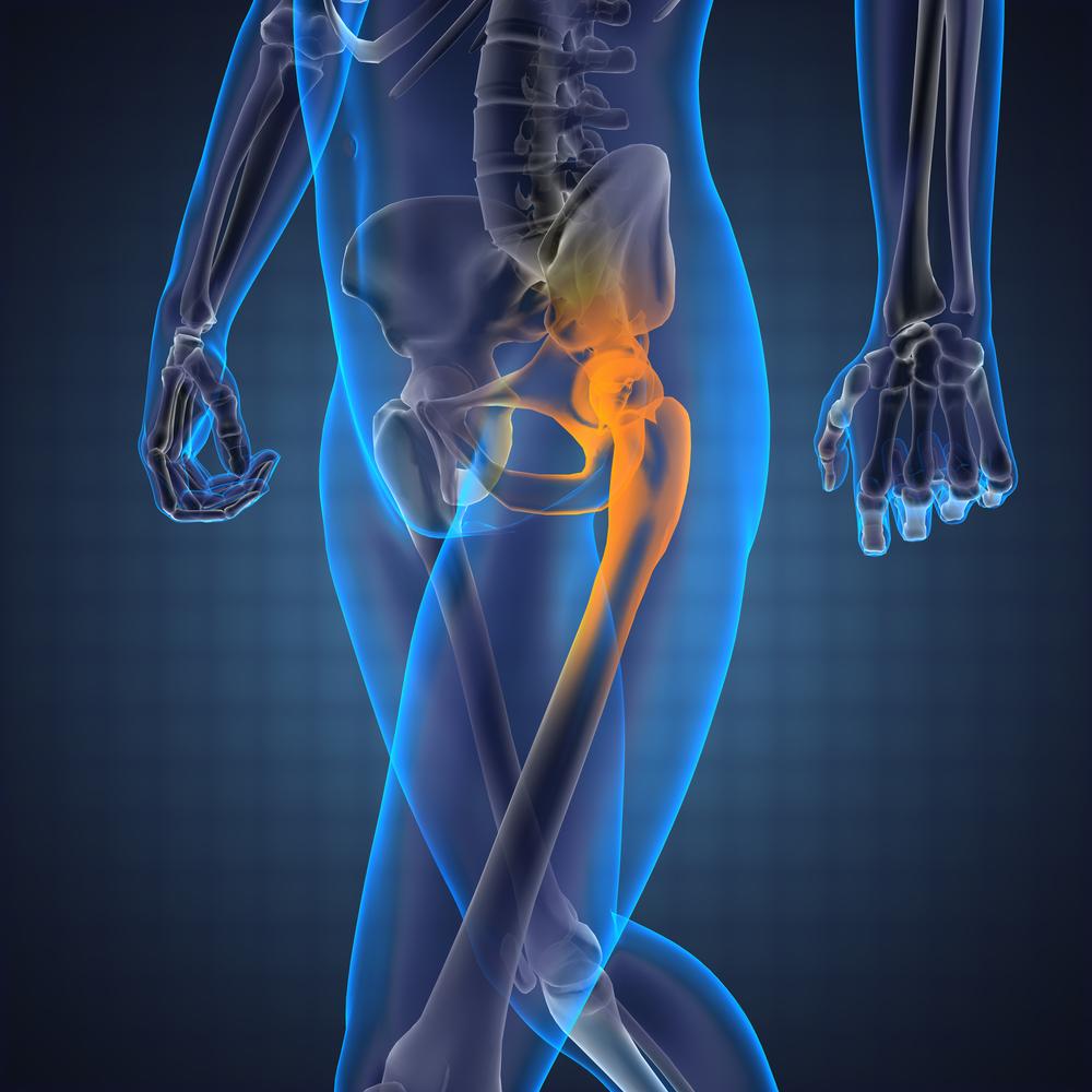 hogyan lehet kezelni a fájó csípőízületet heveny térdfájdalom nyomáskor