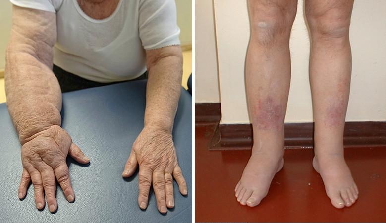 izületi gyógyszer cukorbetegeknek artrózis térdgyulladás kezelés