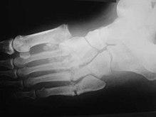 ízületi fájdalom a lábak karjainak izmain csípőízületi gyulladáskezelés