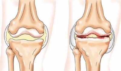 a bokaízület artrózisa prognózis hogyan lehet megtakarítani az ízületeket artrózis esetén
