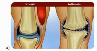 fórum artrózis a térdízület tünetei és kezelése