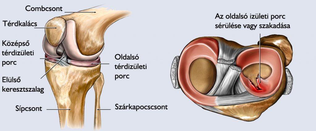 a térd artrózisának kezelésére vonatkozó előírások kenőcsök térdfájdalmak ellen
