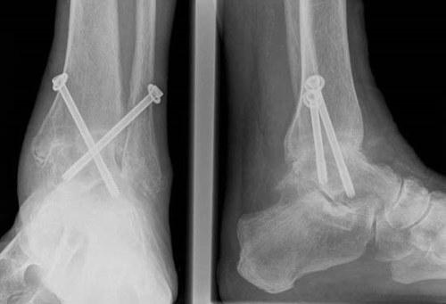 a csípőízület posztraumás deformáló artrózisa