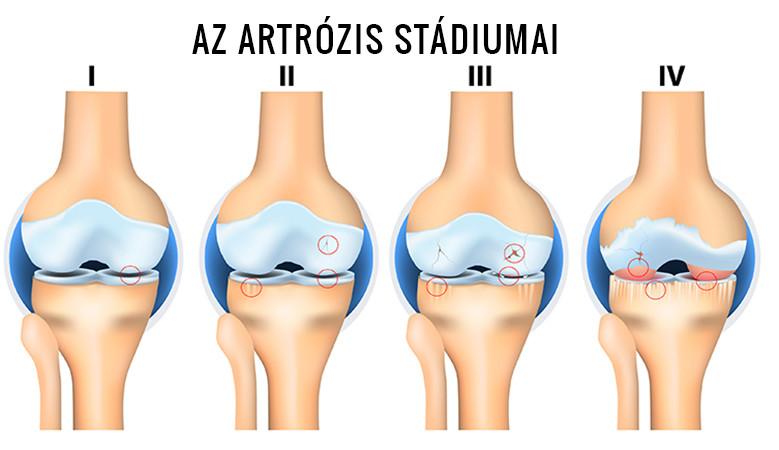 a váll második fokának artrózisa