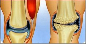 az artrózis fizioterápiás kezelése térd és csípő artrózisa