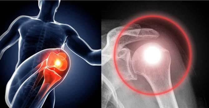 hogyan kezeljük az artrózist külföldön