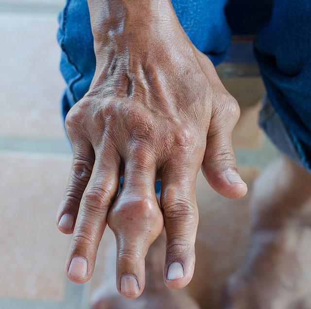az ízület duzzadt és fáj az ujját a kéz előrehajolt ízületének kezelése